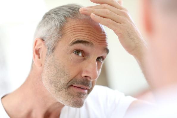 Udowodniono naukowo, że laseroterapia zatrzymuje proces miniaturyzacji mieszków włosowych i może być skuteczną metodą leczenia łysienia.